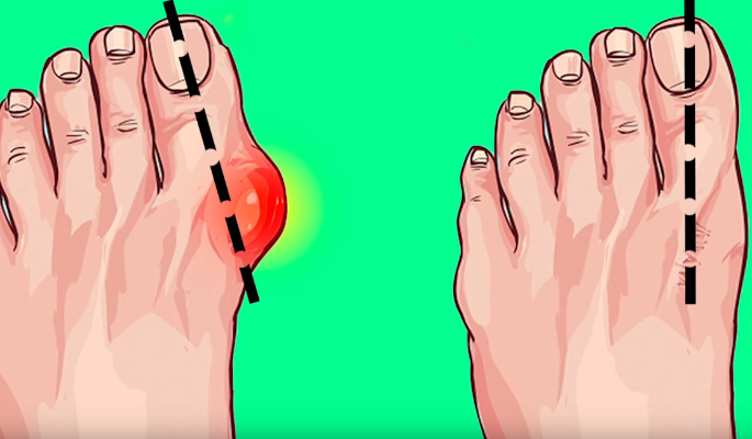 Как вылечить косточки на ногах