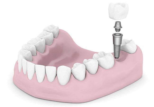 Стоматологические услуги - имплантация и протезирование зубов в Краснодаре